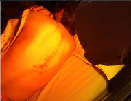 威伐光促进脊柱手术恢复--骨科疗效分享(二)